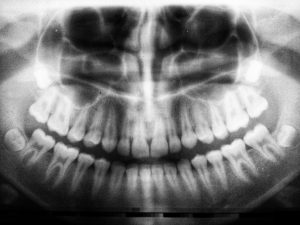 Xray of teeth
