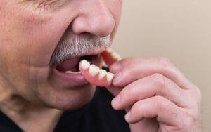 Older man inserting his dentures